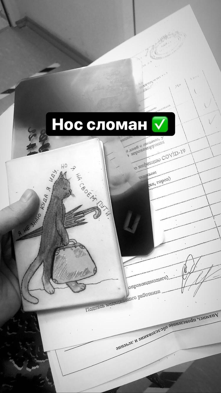 Андрею Аллегрову сломали нос. Фото: clothesbyunique в Instagram