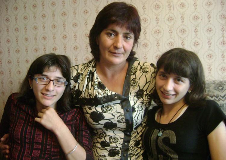 Казалось бы - Зита и Гита не просто сестры, они жили в одном теле, но они совсем разные (Фото: Элина КАЧКАЕВА).