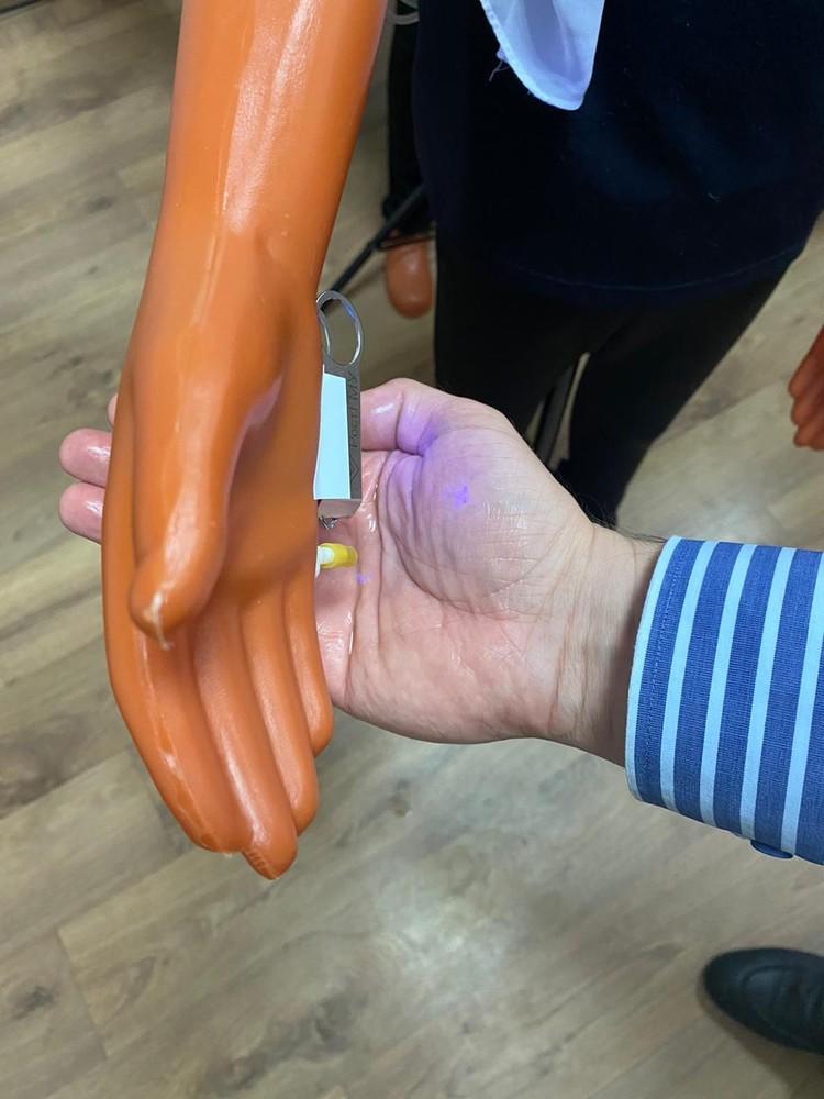 А так происходит обработка рук. Фото: из архива героя публикации