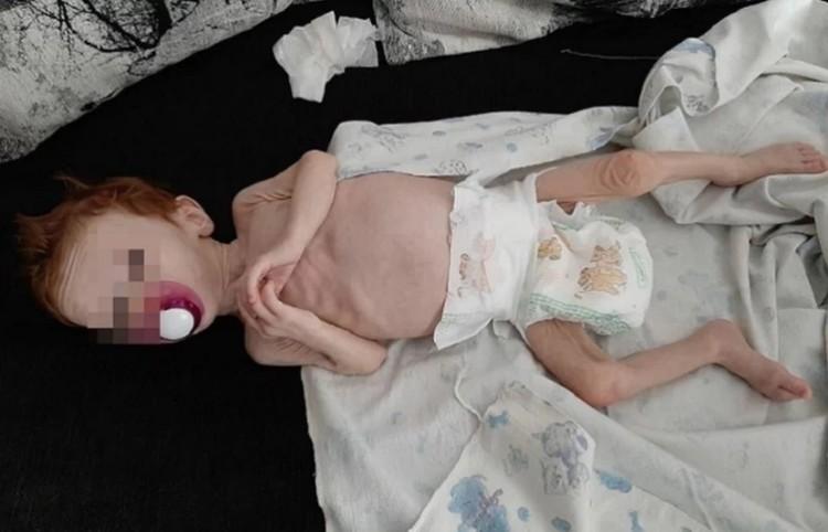 """Так истощенная малышка выглядела когда ее нашли подруги Юлии Фото: предоставлено читателями """"КП"""""""