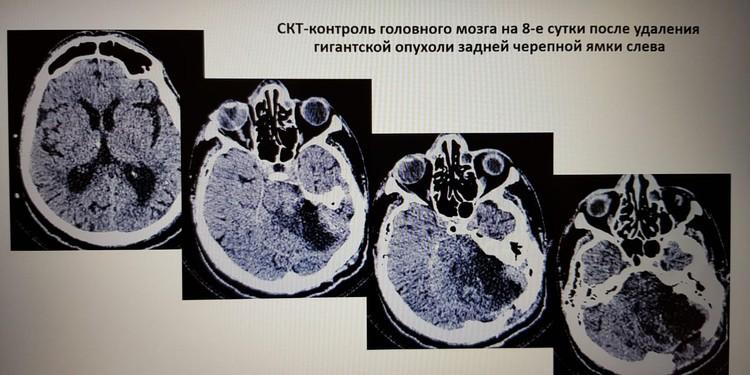 После операции врачи сделали контрольную МРТ. Фото: из архива героя публикации