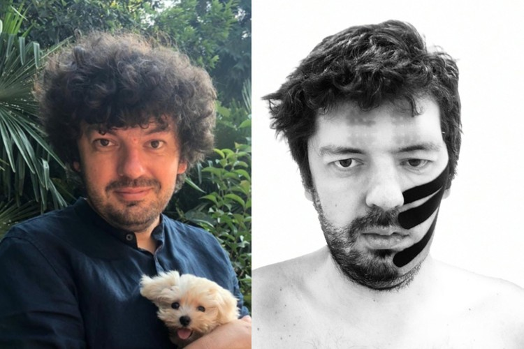 После операции левая половина лица онемела. Фото: Личный архив