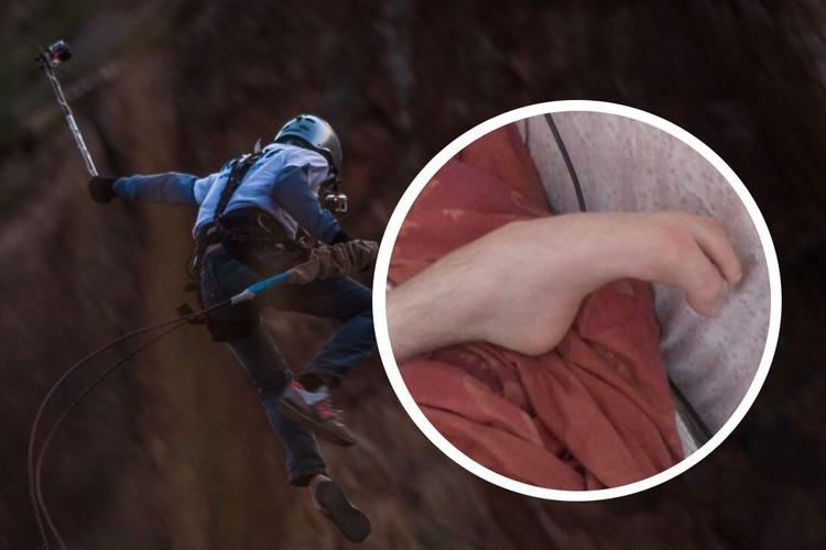 Бывший КМС по альпинизму столкнулся с деформацией стоп - пришлось перенести операцию. Фото: личный архив