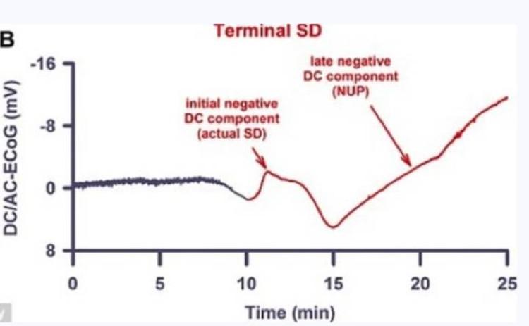 Электрические иимпульсы не утихают в мозгу десятки минут после смерти.