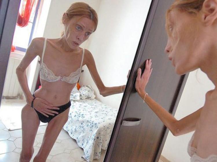 """Умирающая от анорексии модель Изабель Каро в социальной рекламе """"Нет анорексии"""""""